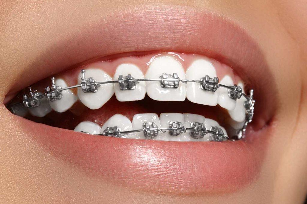 ortodoncia brackets metalicos Salt